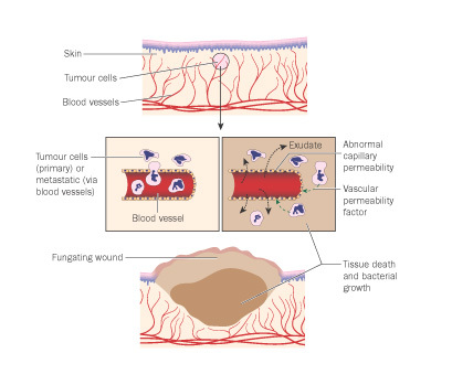 Fungating Wound Diagram