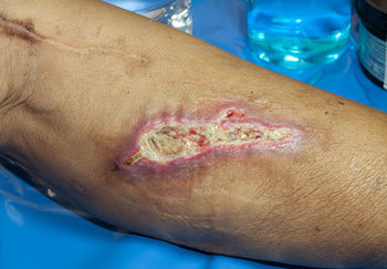 Example Of A Wound CliniMed